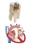 caria dentara - inima