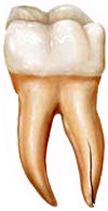 fisura-radiculara