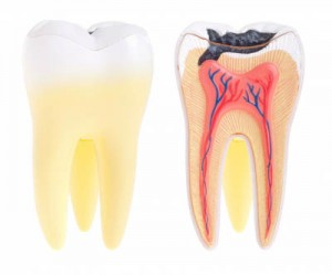 endodontic-canal