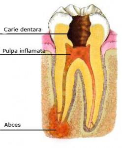 endodontic-patologie