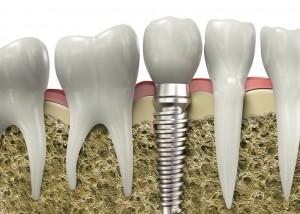 implant dentar 4