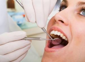 parodontoza-consultatie